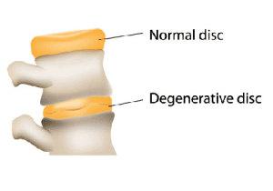 Disc Degeneration