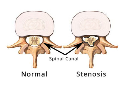 what is lumbar stenosis and how is it treated