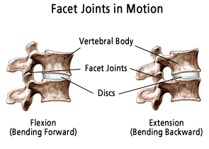 synovial cyst in facet joint