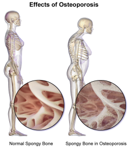 osteoporosis and the spine